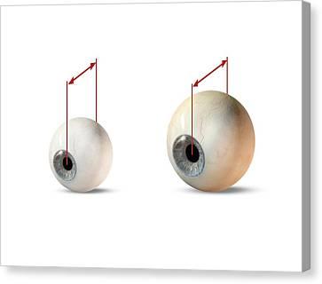 Eye Size Comparison, Artwork Canvas Print by Claus Lunau