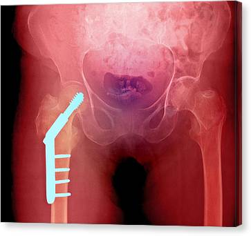 Fixed Hip And Fracture (image 1 Of 2) Canvas Print by Du Cane Medical Imaging Ltd