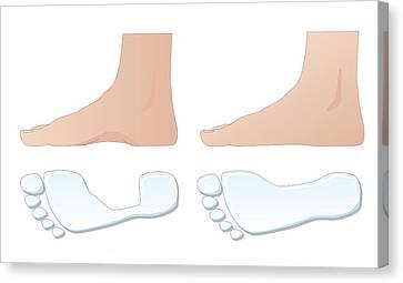 Flat Foot Comparison, Artwork Canvas Print by Peter Gardiner