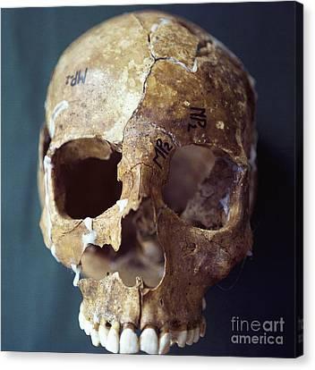 Forensic Evidence, Skull Reconstruction Canvas Print