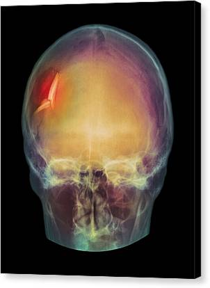 Fractured Skull, X-ray Canvas Print