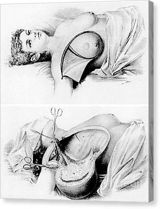 Halsted Radical Mastectomy, Incision Canvas Print