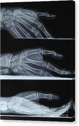 Hand X-ray Canvas Print by Sami Sarkis