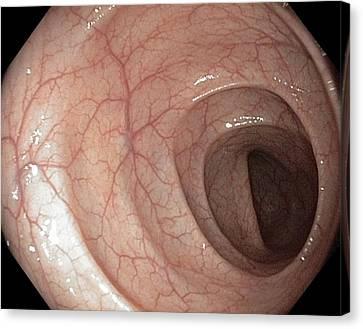 Healthy Colon, Large Intestine Canvas Print by Gastrolab