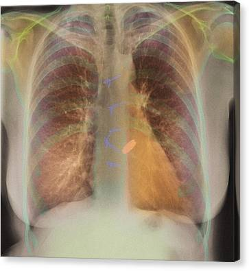 Heart Valve Replacement, X-ray Canvas Print by