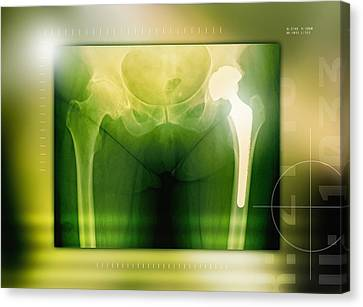 Hip Replacement, X-ray Canvas Print by Miriam Maslo