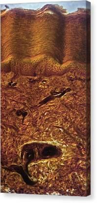 Human Skin, Light Micrograph Canvas Print by Robert Markus