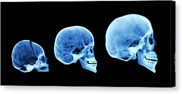 Milk Teeth Canvas Print - Human Skull Development by D. Roberts