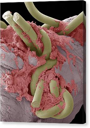 Intestinal Suture Repair, Sem Canvas Print by Steve Gschmeissner