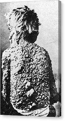 Neurofibromatosis Canvas Print by Science Source