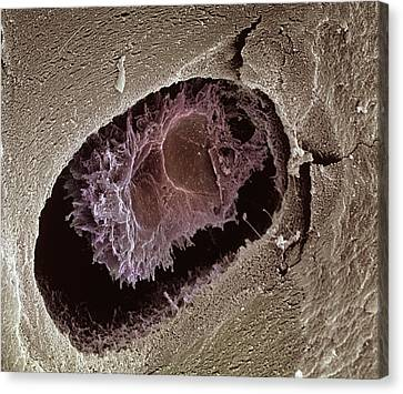 Osteocyte, Sem Canvas Print by Steve Gschmeissner