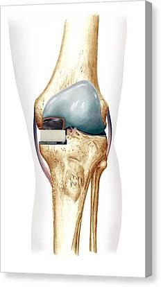 Partial Knee Replacement, Artwork Canvas Print by D & L Graphics