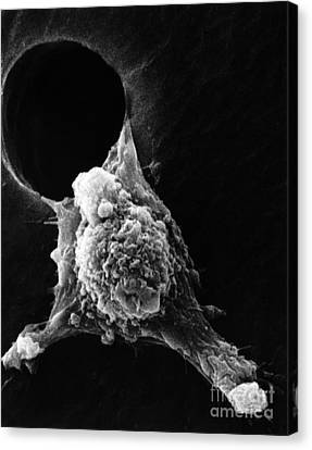 Pseudopodia Sem Canvas Print by Science Source