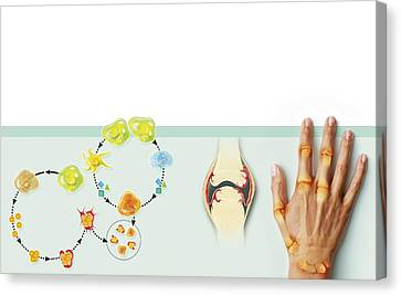 Rheumatoid Arthritis Mechanism, Artwork Canvas Print by Claus Lunau