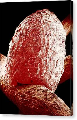 Root Nodule Of White Clover Plant Canvas Print by Dr Jeremy Burgess.