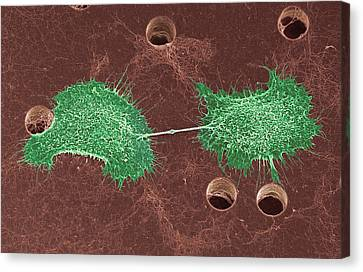 Skin Cancer Cell Dividing, Sem Canvas Print by Steve Gschmeissner