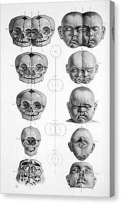 Surgical Anatomy 1856 Canvas Print by Science Source