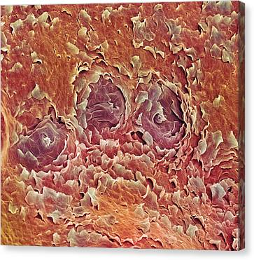 Sweat Glands, Sem Canvas Print by Steve Gschmeissner