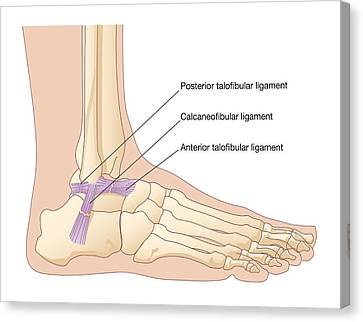 Torn Ankle Ligaments, Artwork Canvas Print by Peter Gardiner