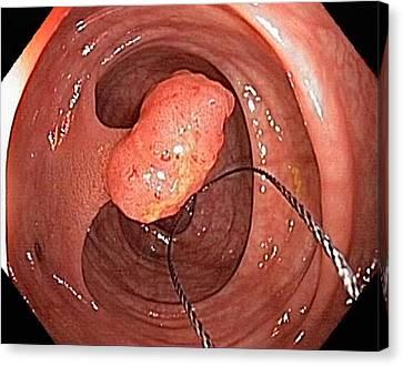Tubular Polyp In The Colon Canvas Print by Gastrolab
