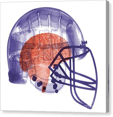 X-ray Of Head In Football Helmet Canvas Print by Ted Kinsman
