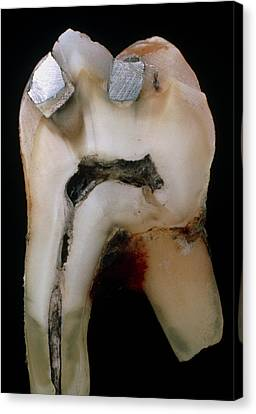 Silver-filled Canvas Print - Extracted Molar by Dr Jeremy Burgess