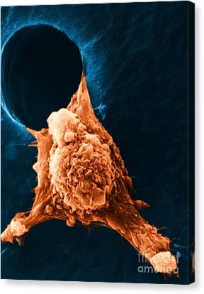 Metastasis Canvas Print by Science Source