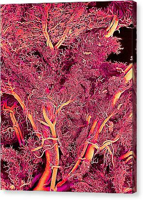 Blood Vessels, Sem Canvas Print by Susumu Nishinaga