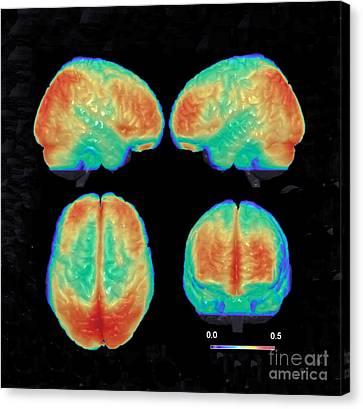 Bipolar Canvas Print - Bipolar Brain, 3d Mri Scan by Science Source