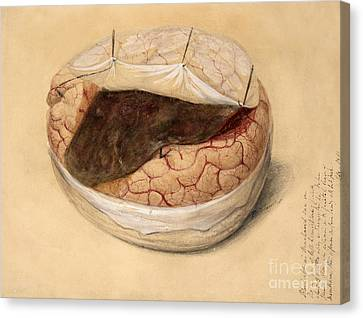 Blood Clot, Brain, Illustration 1869 Canvas Print