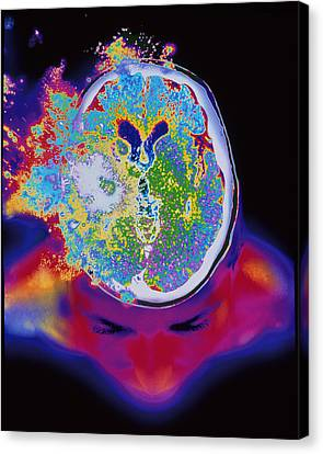 Brain Malfunction Canvas Print