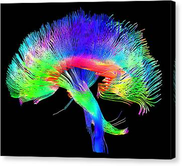 Brain Pathways Canvas Print by Tom Barrick, Chris Clark, Sghms