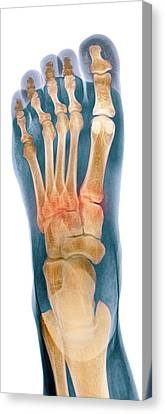 Crushed Broken Foot, X-ray Canvas Print by