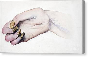 Deformed Hand, Division Of Median Nerve Canvas Print by Wellcome Images