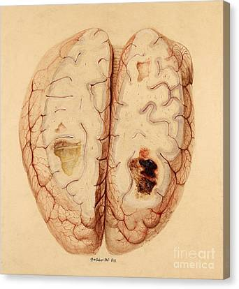 Extravasated Blood, Brain Canvas Print