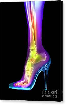 X-rays Of Canvas Print - Foot In High Heel Xray by Spl