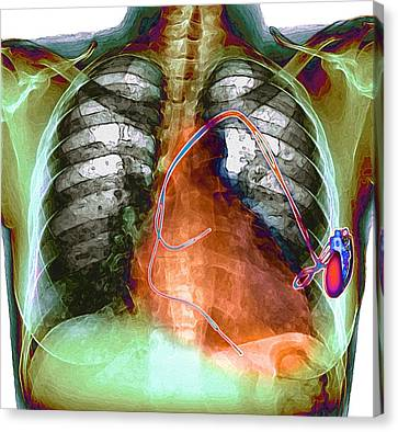 Heart Pacemaker, X-ray Canvas Print by Du Cane Medical Imaging Ltd