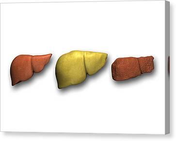 Liver: Normal, Fatty, Cirrhotic Canvas Print by Pasieka
