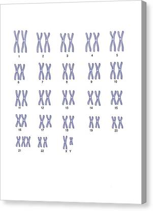 Male Down's Syndrome Karyotype, Artwork Canvas Print by Peter Gardiner