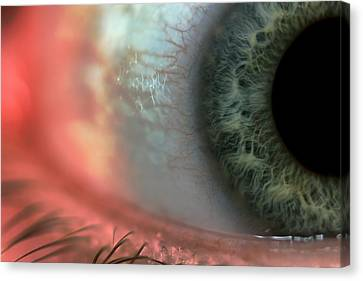 Red Eye Canvas Print by EXparte SE
