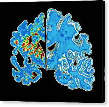 Sectioned Brains: Alzheimer's Disease Vs Normal Canvas Print by Pasieka