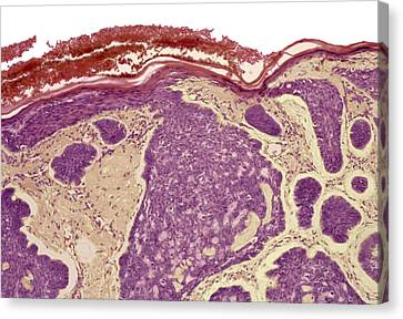 Skin Cancer, Light Micrograph Canvas Print by Steve Gschmeissner