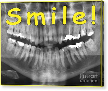 Yellow Panoramic Dental X-ray With A Smile  Canvas Print by Ilan Rosen