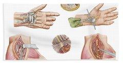 Medical Illustration Showing Carpal Bath Towel