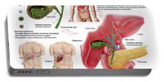 Illustration Depicting Cholecystectomy Portable Battery Charger