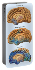 Alzheimers Disease, Severity Comparison Portable Battery Charger