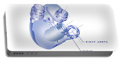 Artificial Heart Portable Battery Charger