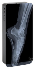 Ballet Dancer X-ray 2 Portable Battery Charger