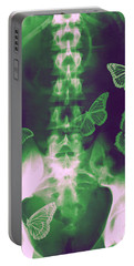 Butterflies In The Stomach Portable Battery Charger