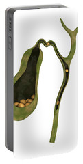 Conceptual Image Of Gallstones Portable Battery Charger